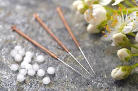Behandlungsschwerpunkt: Akupunktur